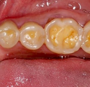 What is dental erosion? | McKeefry Dental