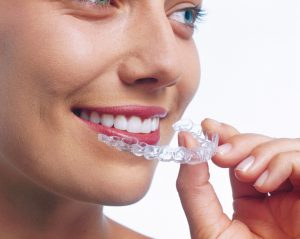 Invisalign vs Braces | Angela Mckeefry Dental